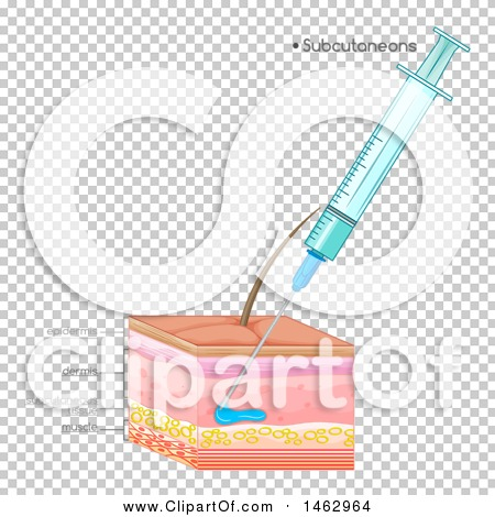 Transparent clip art background preview #COLLC1462964