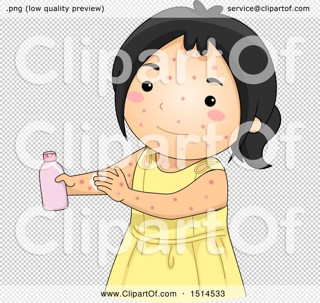 Clipart of a Girl Sick with Chicken Pox, Applying Lotion ...