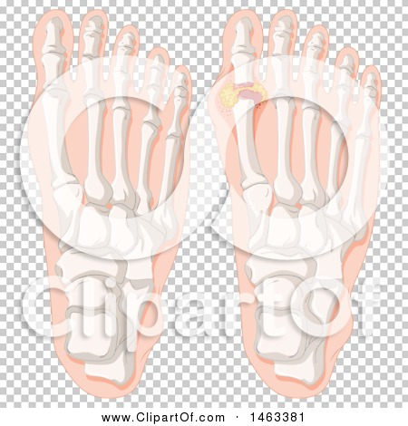 Transparent clip art background preview #COLLC1463381