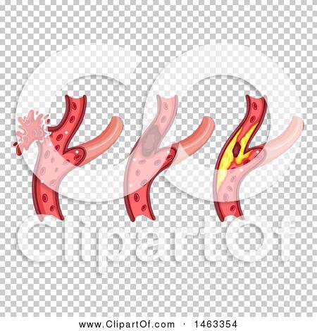 Transparent clip art background preview #COLLC1463354